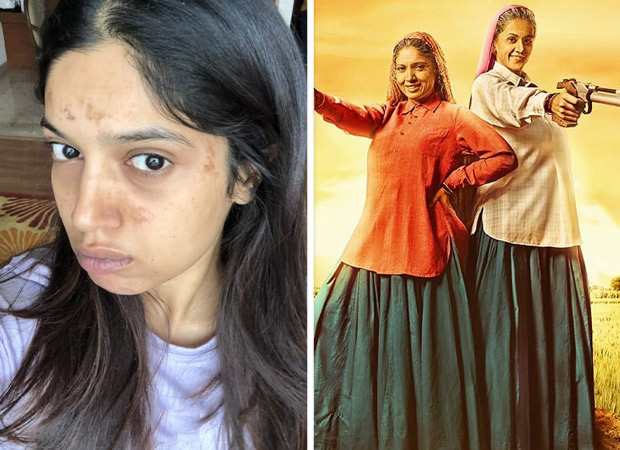 Bhumi Pednekar gets blisters on her face during the shoot of Saand Ki Aankh